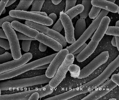 Colonie d'Escherichia coli